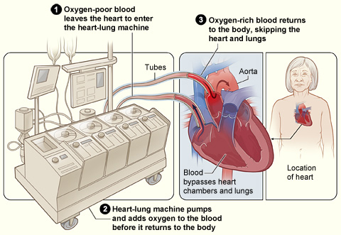Illustration of a heart–lung machine in use. The contact between the blood and the device can trigger blood clotting, which must be managed using blood thinners. (Diagram: USA National Institutes of Health)